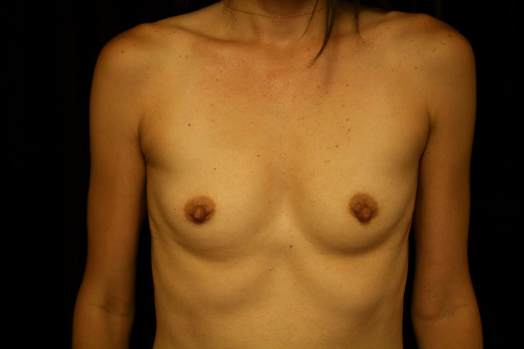 Breast Augmentation Gallery - Patient 39235549 - Image 1