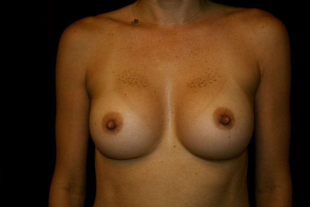 Breast Augmentation Gallery - Patient 39235549 - Image 2