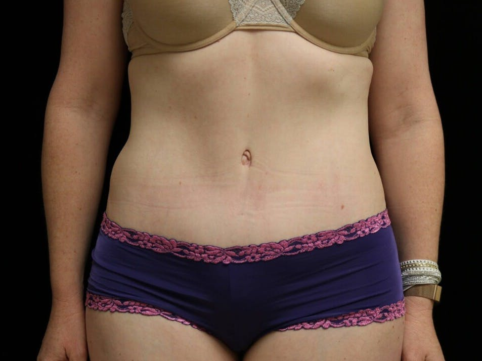 Tummy Tuck Gallery - Patient 39235555 - Image 2