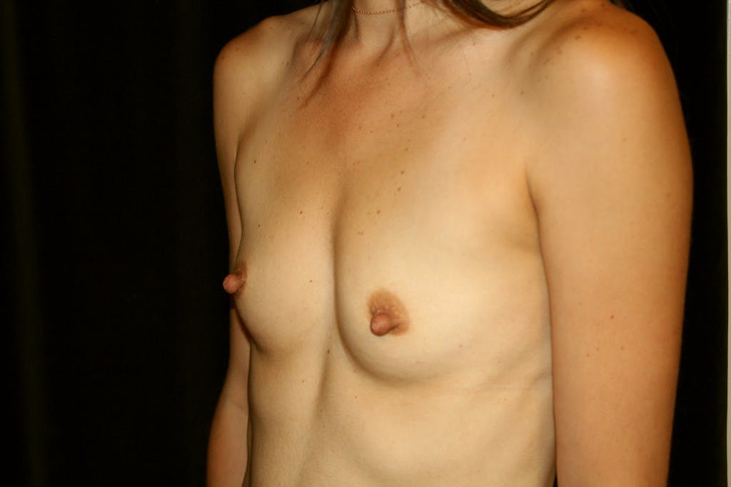 Breast Augmentation Gallery - Patient 39235549 - Image 3