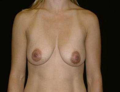 Peri-areolar Breast Lift Gallery - Patient 39235546 - Image 1