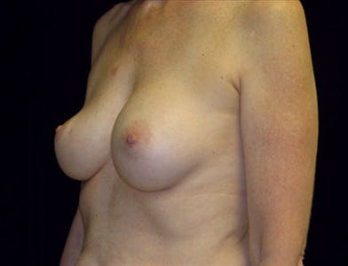 Revision Breast Surgery Gallery - Patient 39235547 - Image 1