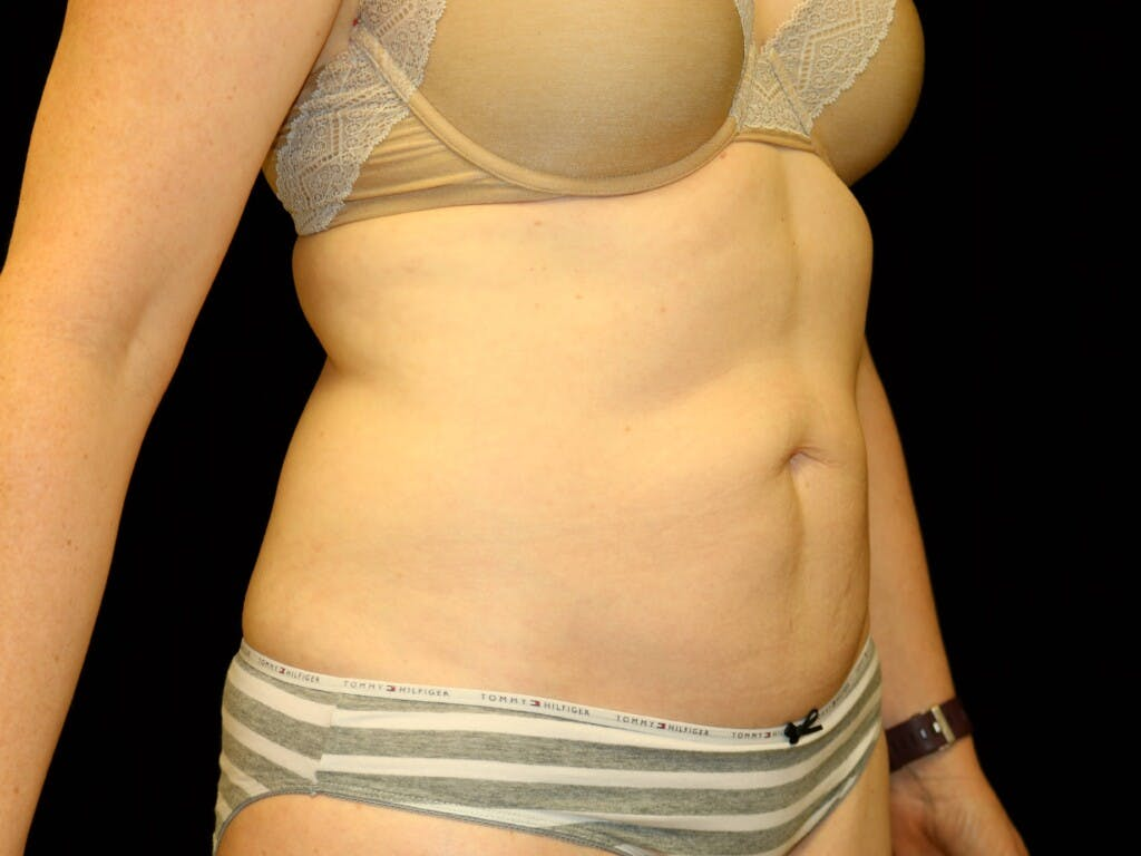 Tummy Tuck Gallery - Patient 39235555 - Image 3