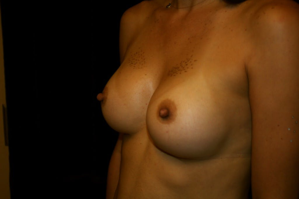 Breast Augmentation Gallery - Patient 39235549 - Image 4