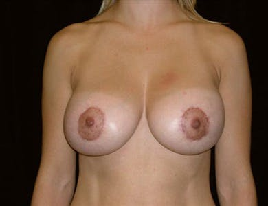 Peri-areolar Breast Lift Gallery - Patient 39235546 - Image 2