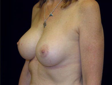Revision Breast Surgery Gallery - Patient 39235547 - Image 2