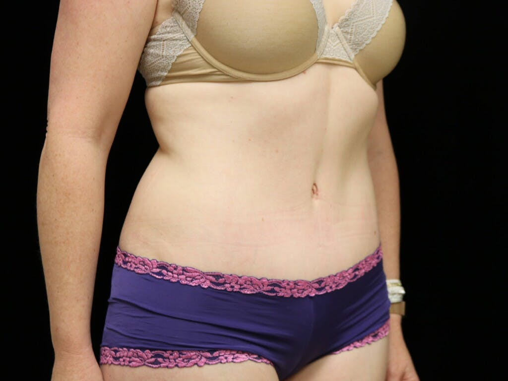 Tummy Tuck Gallery - Patient 39235555 - Image 4