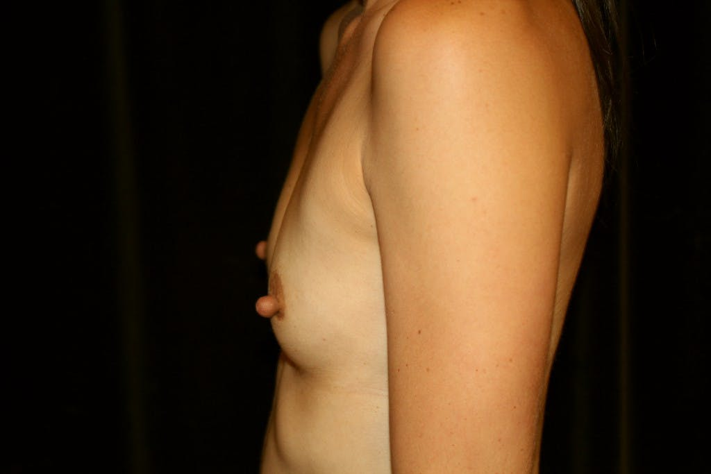 Breast Augmentation Gallery - Patient 39235549 - Image 5