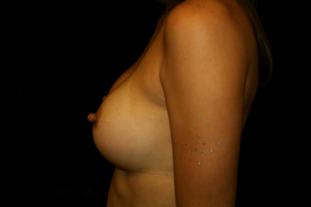 Breast Augmentation Gallery - Patient 39235549 - Image 6