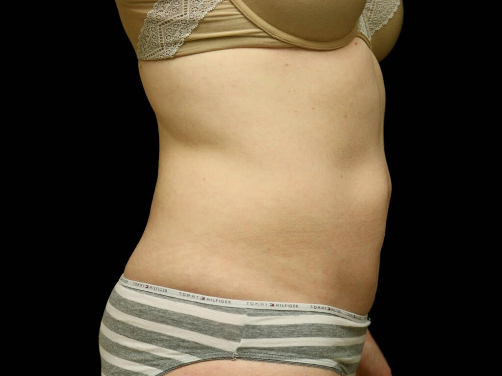 Tummy Tuck Gallery - Patient 39235555 - Image 5