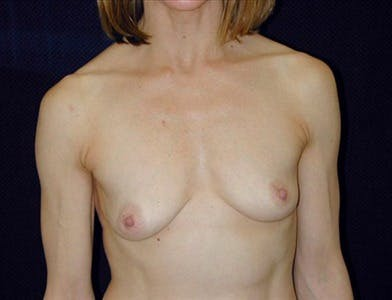 Peri-areolar Breast Lift Gallery - Patient 39235551 - Image 1