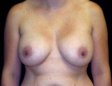 Revision Breast Surgery Gallery - Patient 39235550 - Image 1