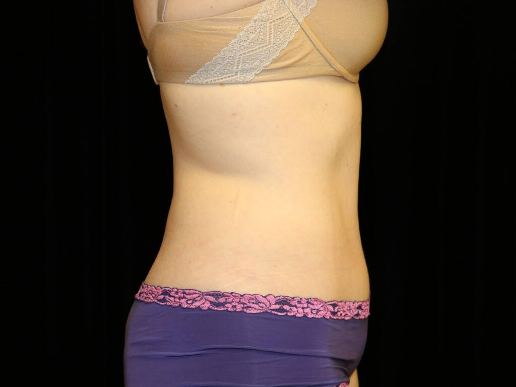 Tummy Tuck Gallery - Patient 39235555 - Image 6