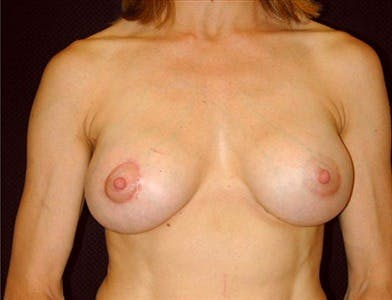 Peri-areolar Breast Lift Gallery - Patient 39235551 - Image 2