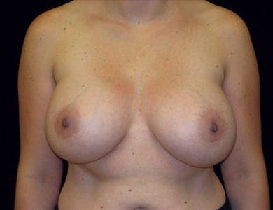 Revision Breast Surgery Gallery - Patient 39235550 - Image 2