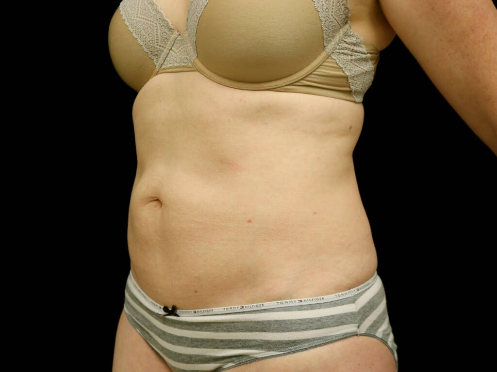 Tummy Tuck Gallery - Patient 39235555 - Image 7