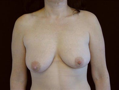 Vertical and Inverted T Breast Lift Gallery - Patient 39235552 - Image 1