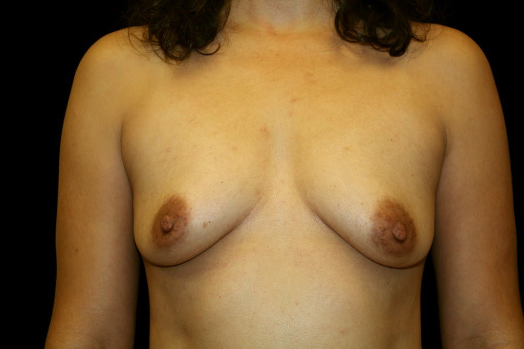 Breast Augmentation Gallery - Patient 39235559 - Image 1