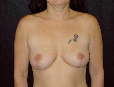 Vertical and Inverted T Breast Lift Gallery - Patient 39235552 - Image 2