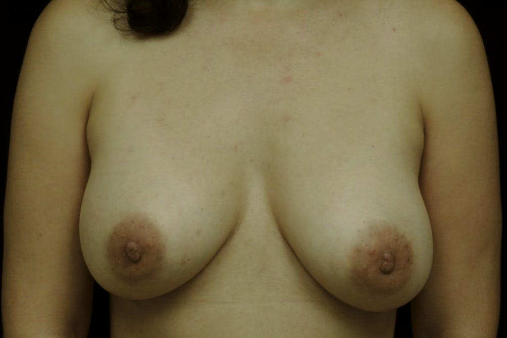 Breast Augmentation Gallery - Patient 39235559 - Image 2