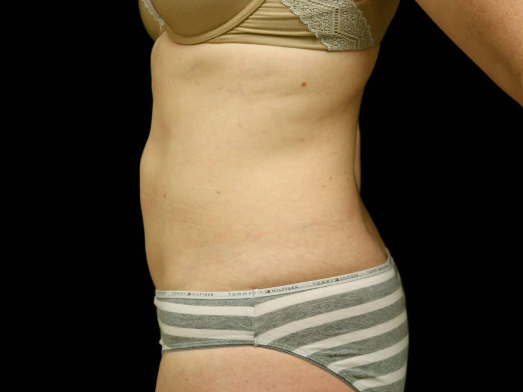 Tummy Tuck Gallery - Patient 39235555 - Image 9