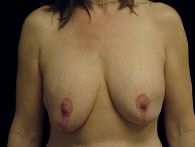 Revision Breast Surgery Gallery - Patient 39235553 - Image 1
