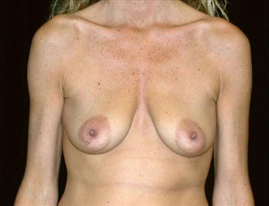 Peri-areolar Breast Lift Gallery - Patient 39235554 - Image 1