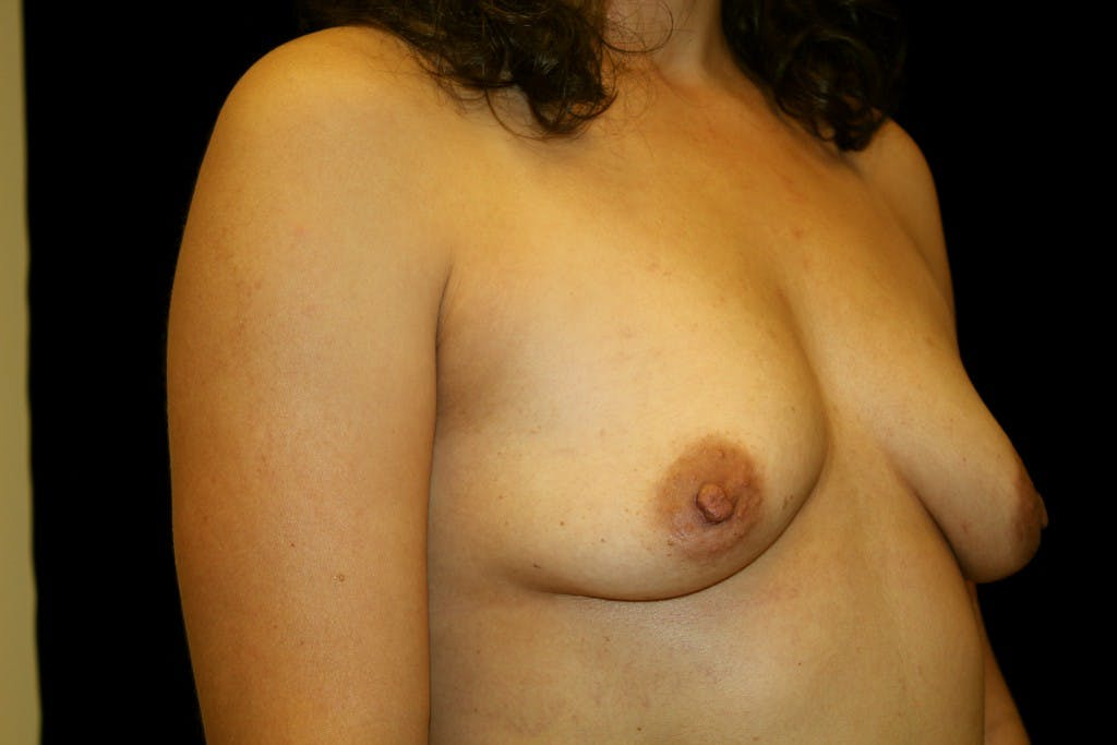 Breast Augmentation Gallery - Patient 39235559 - Image 3