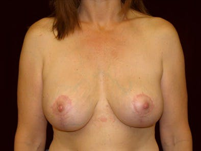 Revision Breast Surgery Gallery - Patient 39235553 - Image 2