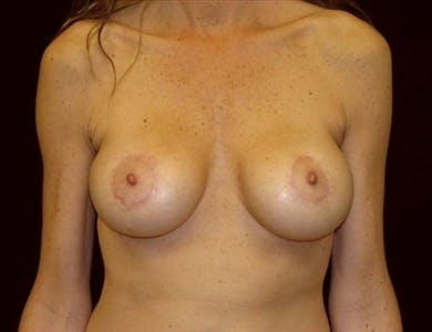 Peri-areolar Breast Lift Gallery - Patient 39235554 - Image 2