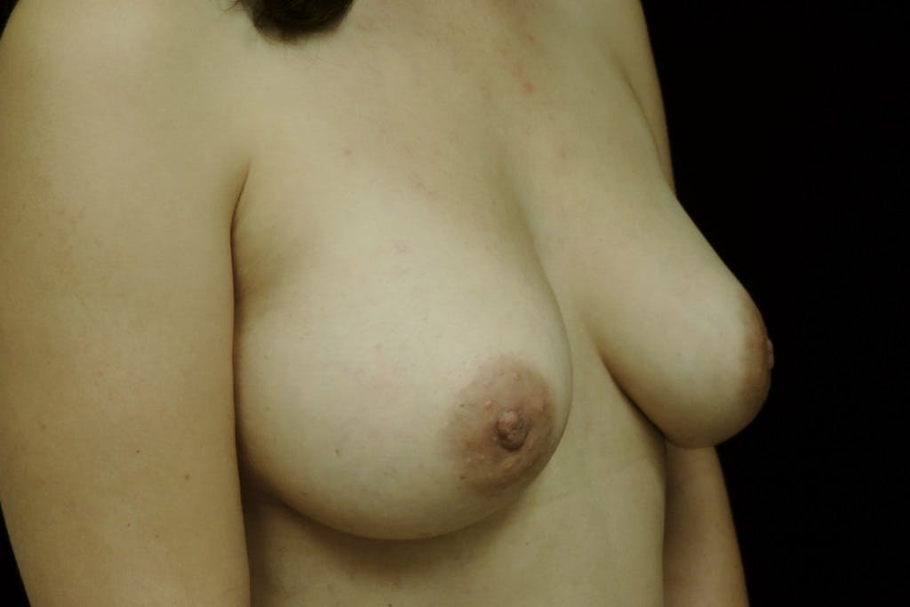 Breast Augmentation Gallery - Patient 39235559 - Image 4