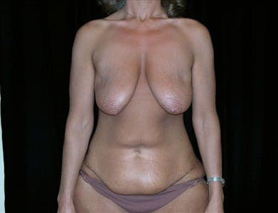 Vertical and Inverted T Breast Lift Gallery - Patient 39235556 - Image 1
