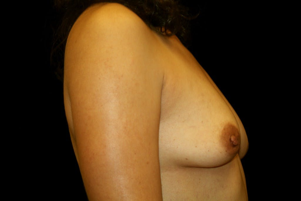 Breast Augmentation Gallery - Patient 39235559 - Image 5