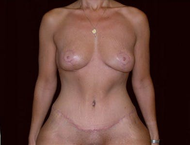 Vertical and Inverted T Breast Lift Gallery - Patient 39235556 - Image 2
