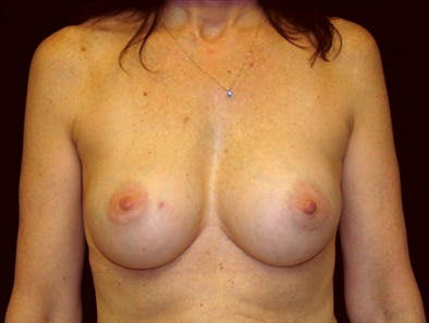 Revision Breast Surgery Gallery - Patient 39235558 - Image 1