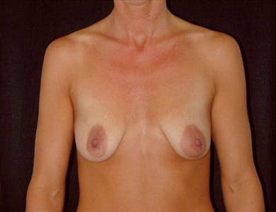 Peri-areolar Breast Lift Gallery - Patient 39235560 - Image 1