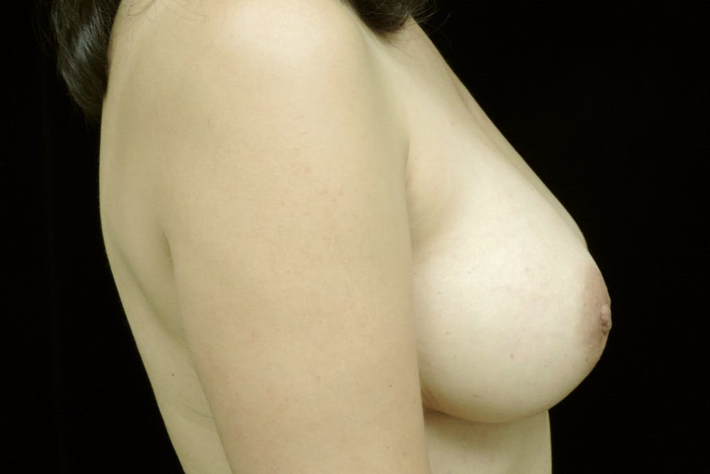 Breast Augmentation Gallery - Patient 39235559 - Image 6