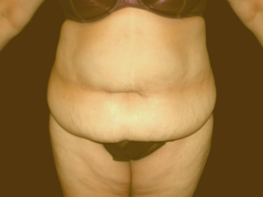 Tummy Tuck Gallery - Patient 39235569 - Image 1