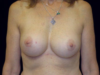 Revision Breast Surgery Gallery - Patient 39235558 - Image 2