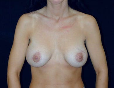 Peri-areolar Breast Lift Gallery - Patient 39235560 - Image 2