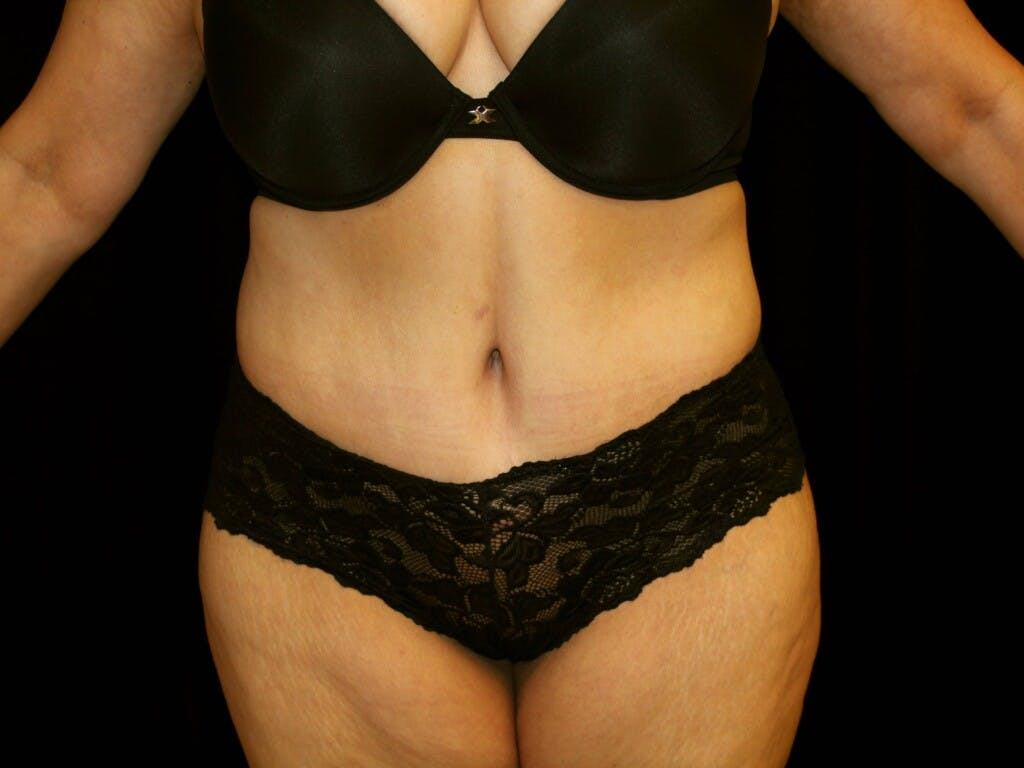 Tummy Tuck Gallery - Patient 39235569 - Image 2