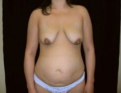 Vertical and Inverted T Breast Lift Gallery - Patient 39235561 - Image 1