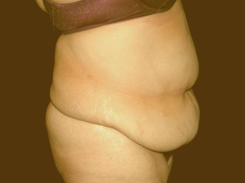 Tummy Tuck Gallery - Patient 39235569 - Image 3