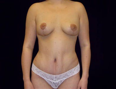 Vertical and Inverted T Breast Lift Gallery - Patient 39235561 - Image 2