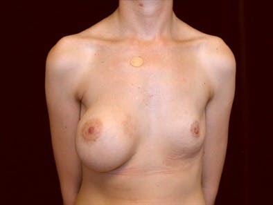 Revision Breast Surgery Gallery - Patient 39235562 - Image 1