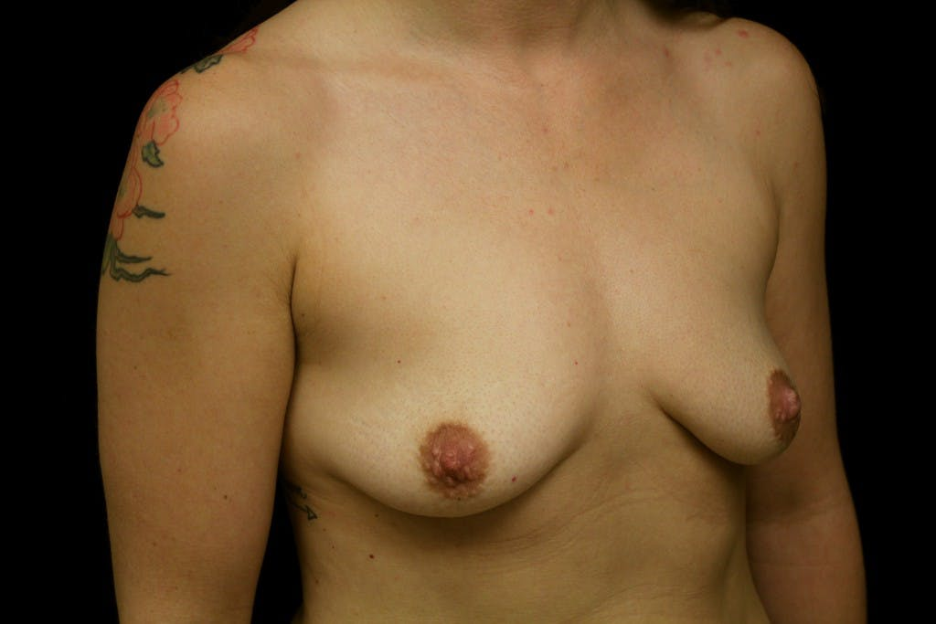 Breast Augmentation Gallery - Patient 39235565 - Image 1