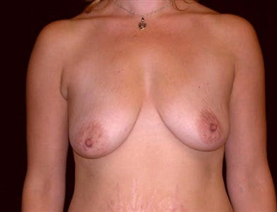 Peri-areolar Breast Lift Gallery - Patient 39235563 - Image 1