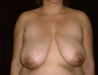Breast Reduction T Incision Gallery - Patient 39235564 - Image 1