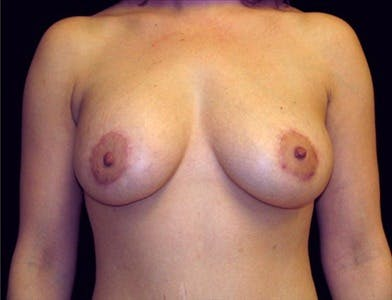 Peri-areolar Breast Lift Gallery - Patient 39235563 - Image 2