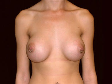 Revision Breast Surgery Gallery - Patient 39235562 - Image 2